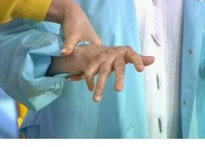 Суставы. Ревматоидный артрит: что делать, чтобы руки не скрючило